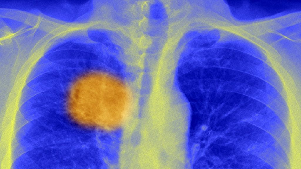 Британские ученые заявили о прорыве в лечении рака