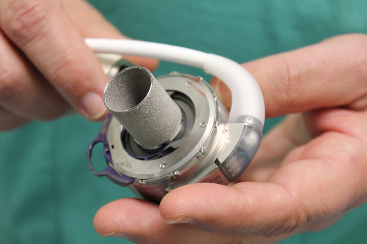 Ватиканский госпиталь первым в мире пересадил подростку новое искусственное сердце
