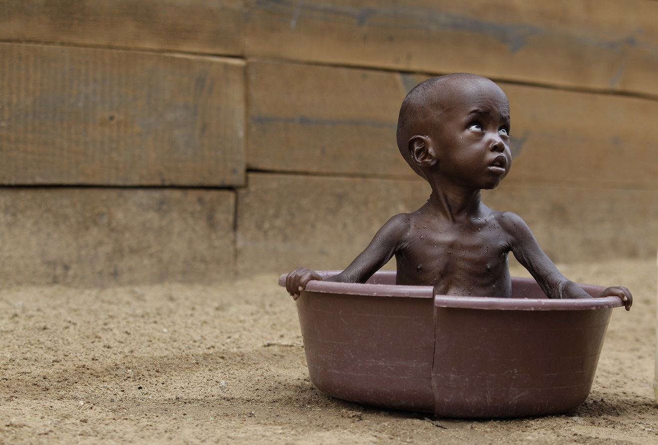 ООН: из-за войн и климата число голодающих в мире выросло впервые за 10 лет