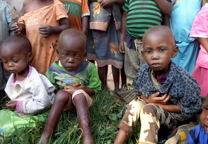 Детям Конго грозит голодная смерть. Католические епископы обеспокоены сложившейся ситуацией