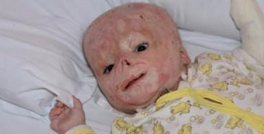 Обгоревший младенец из Тулы будет взят под опеку
