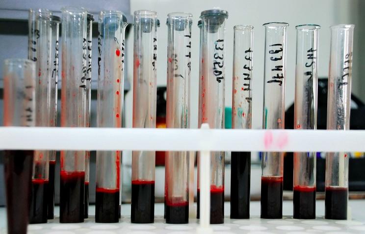 Роспотребнадзор: Oколо 30% зараженных ВИЧ россиян не подозревают о своей болезни