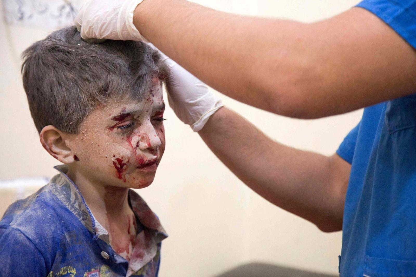 Папа: виновные в бомбардировках мирного населения Алеппо ответят перед Богом
