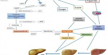 Ученые из ватиканской клиники «Бамбино Джезу» выявили связь между потреблением фруктозы и заболеваниями печени